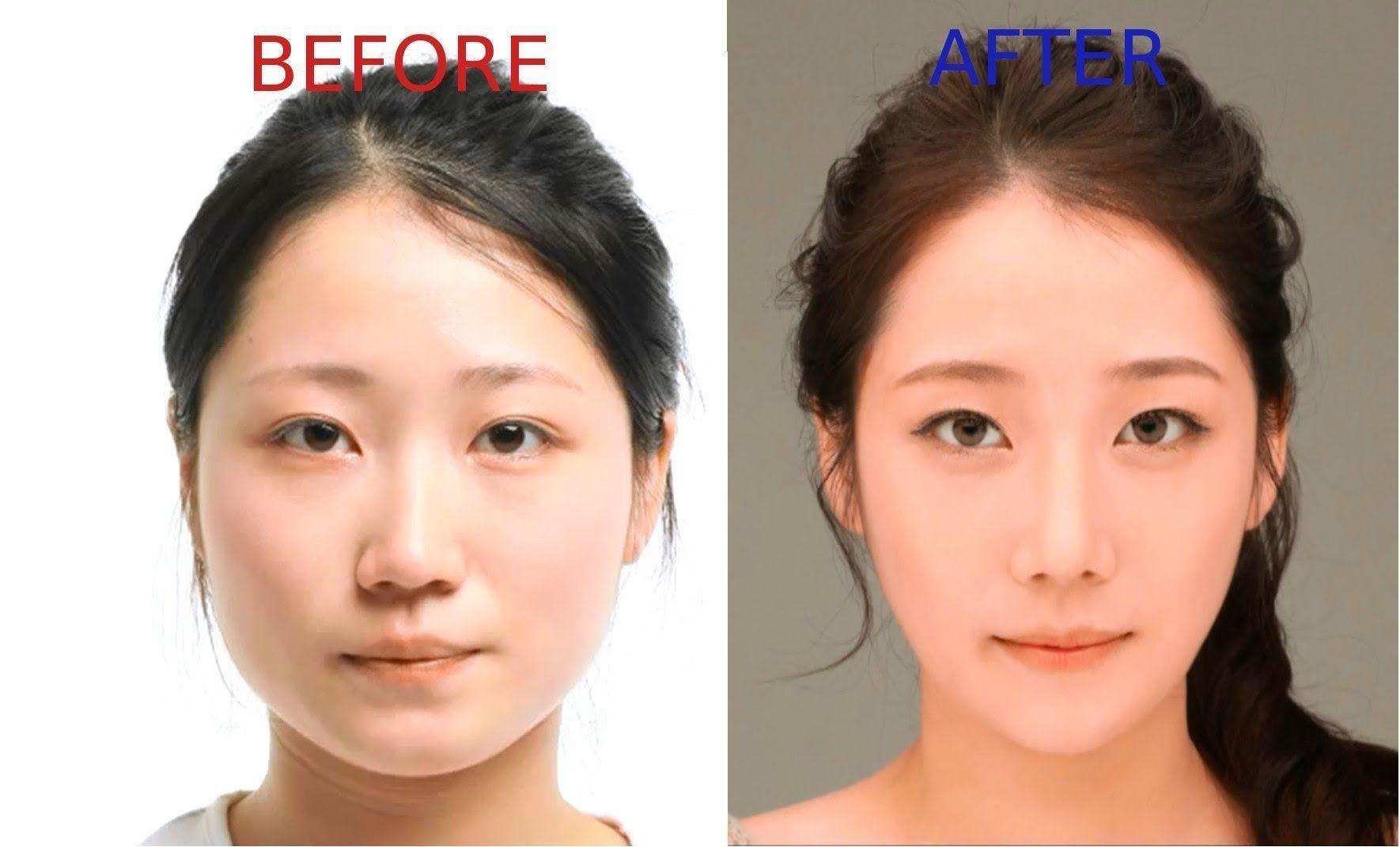пластическая хирургия 4